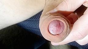 Foreskin stretching...