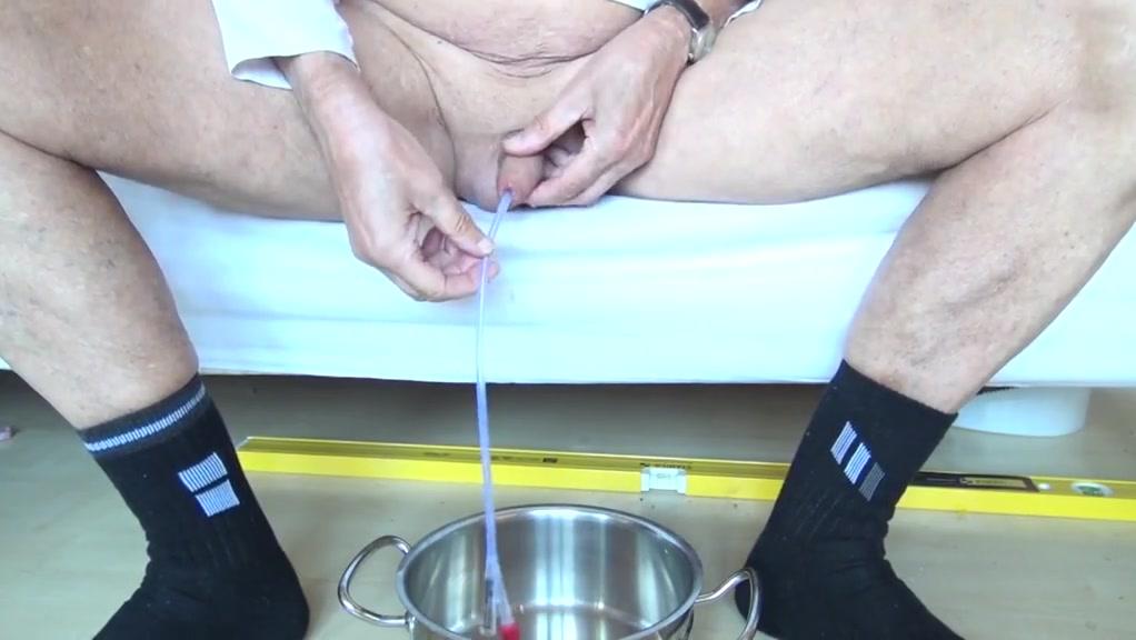 inserting an 18 ch (6mm diameter) catheter Chaturbate light skin girl huge tits