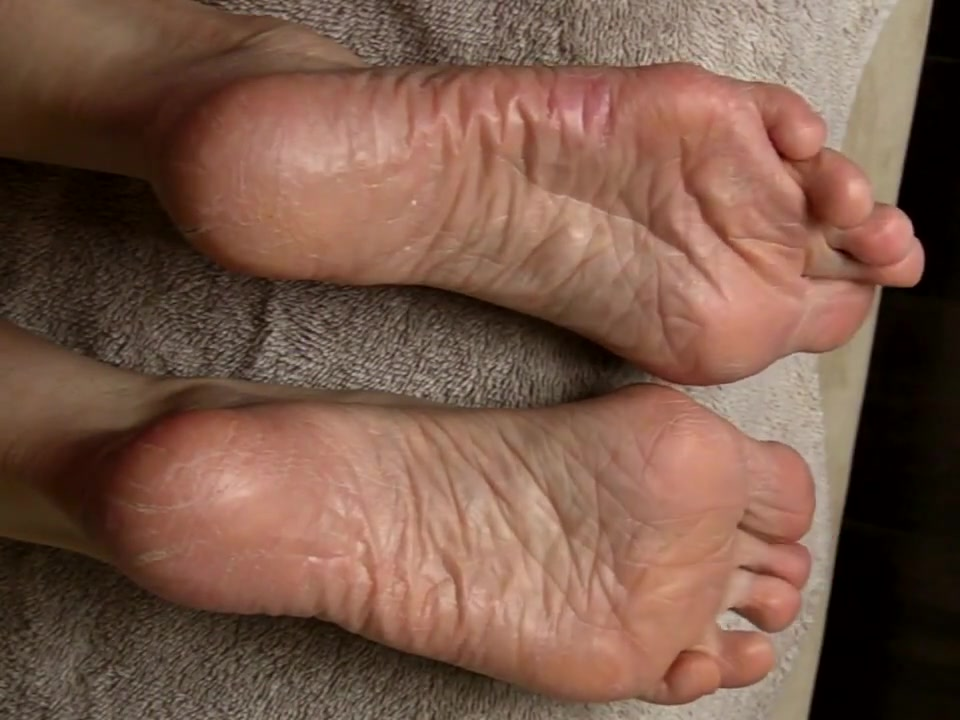 More Therapy for Lyn s Dry Feet - Part 4.
