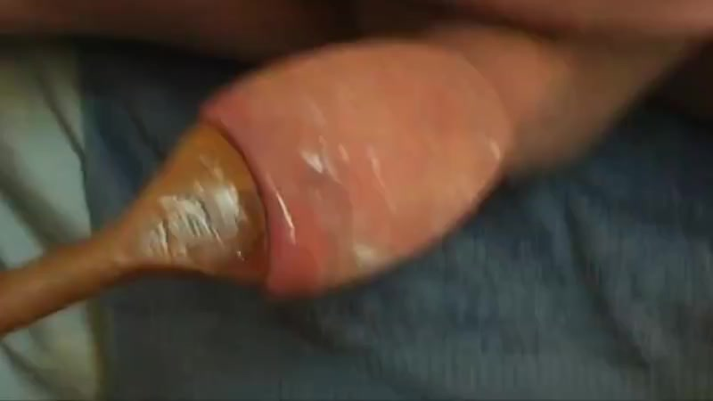 Another three videos - foreskin with spoon Busty amateur girls tgp