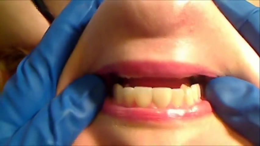 Gloved Mouth Exam